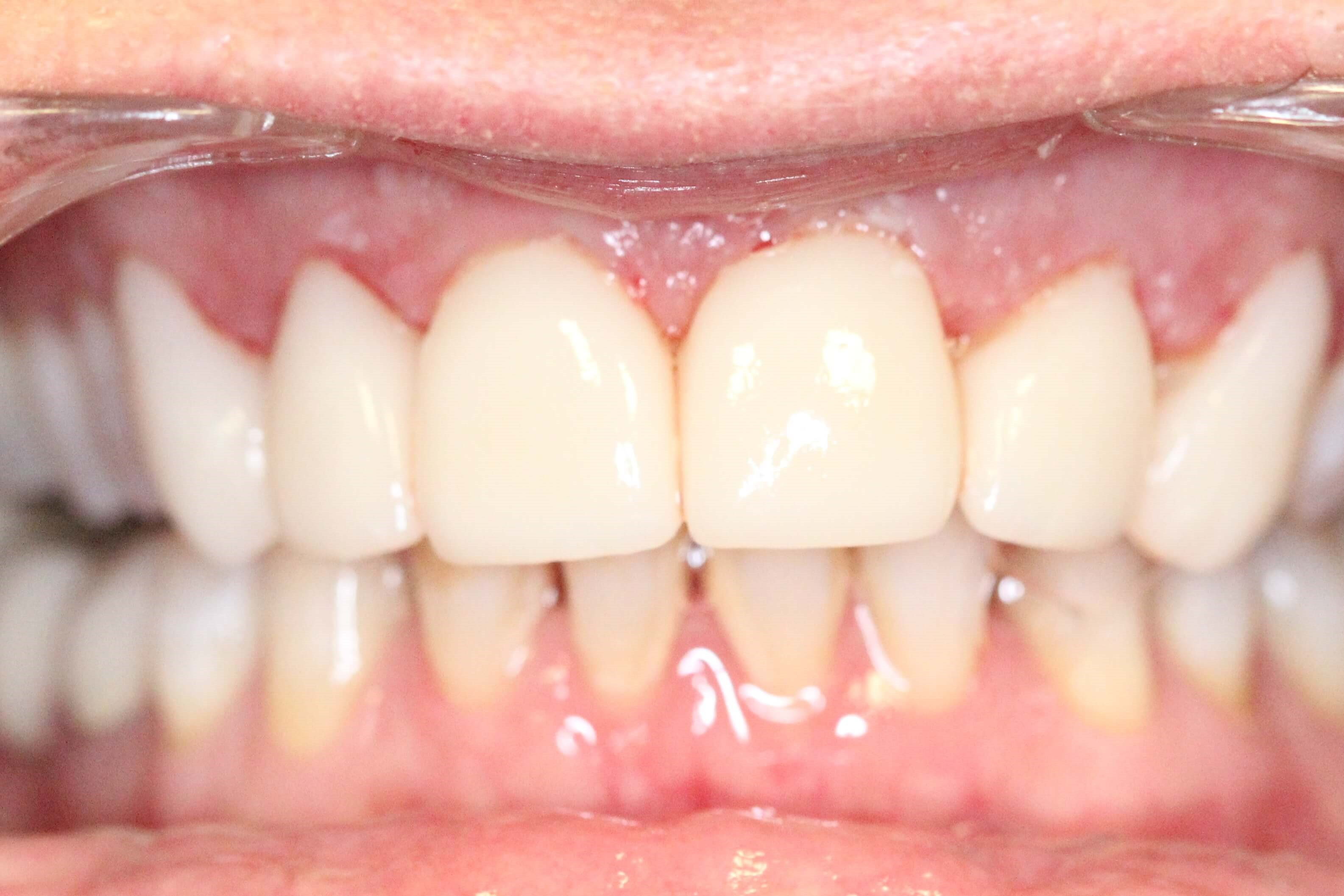 Clear Correct and Veneers After