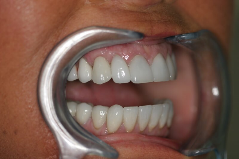 Implant Crown After