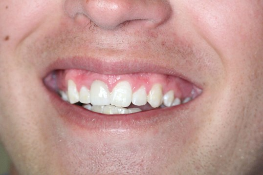 Chipped front tooth After