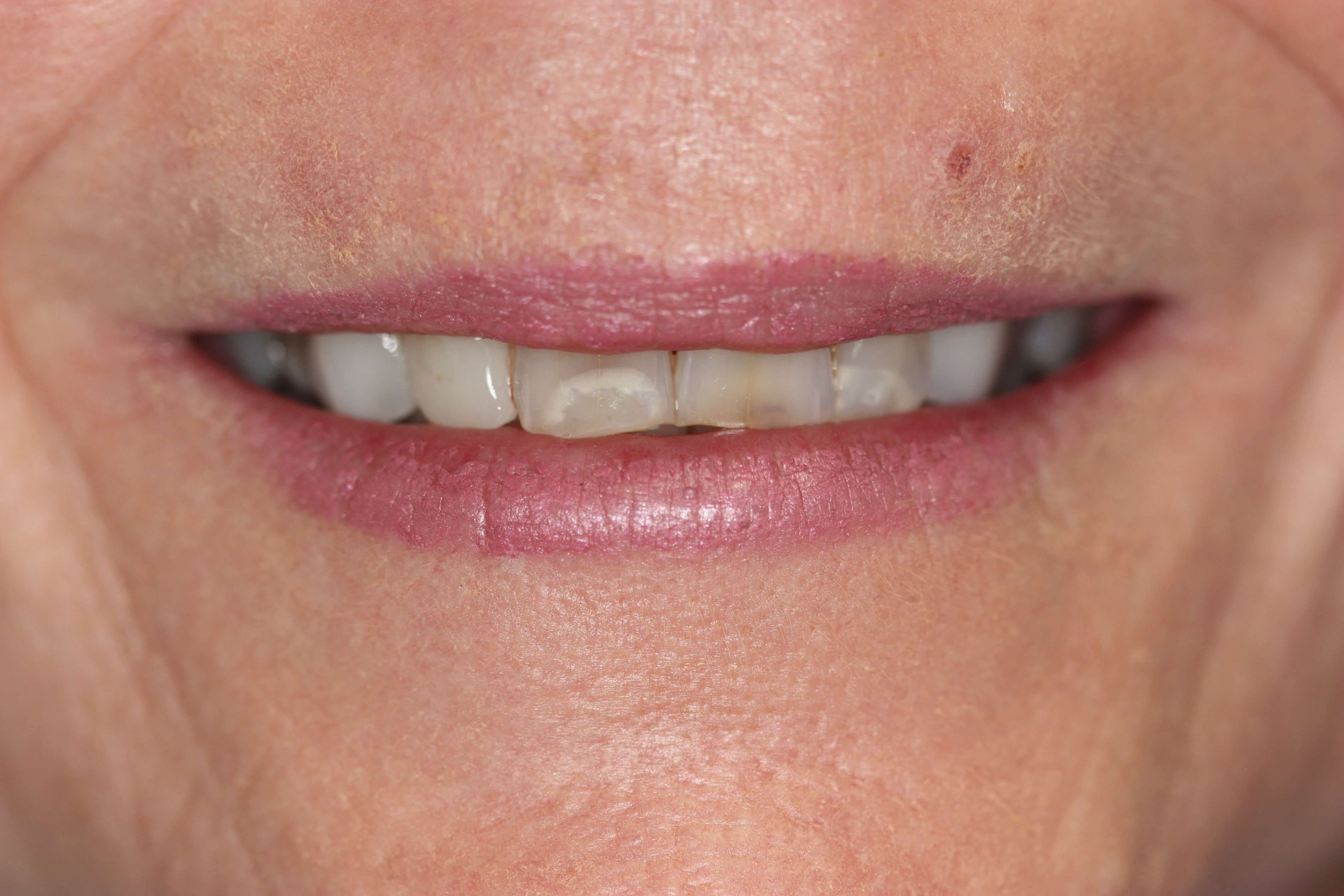 Worn dentition Before