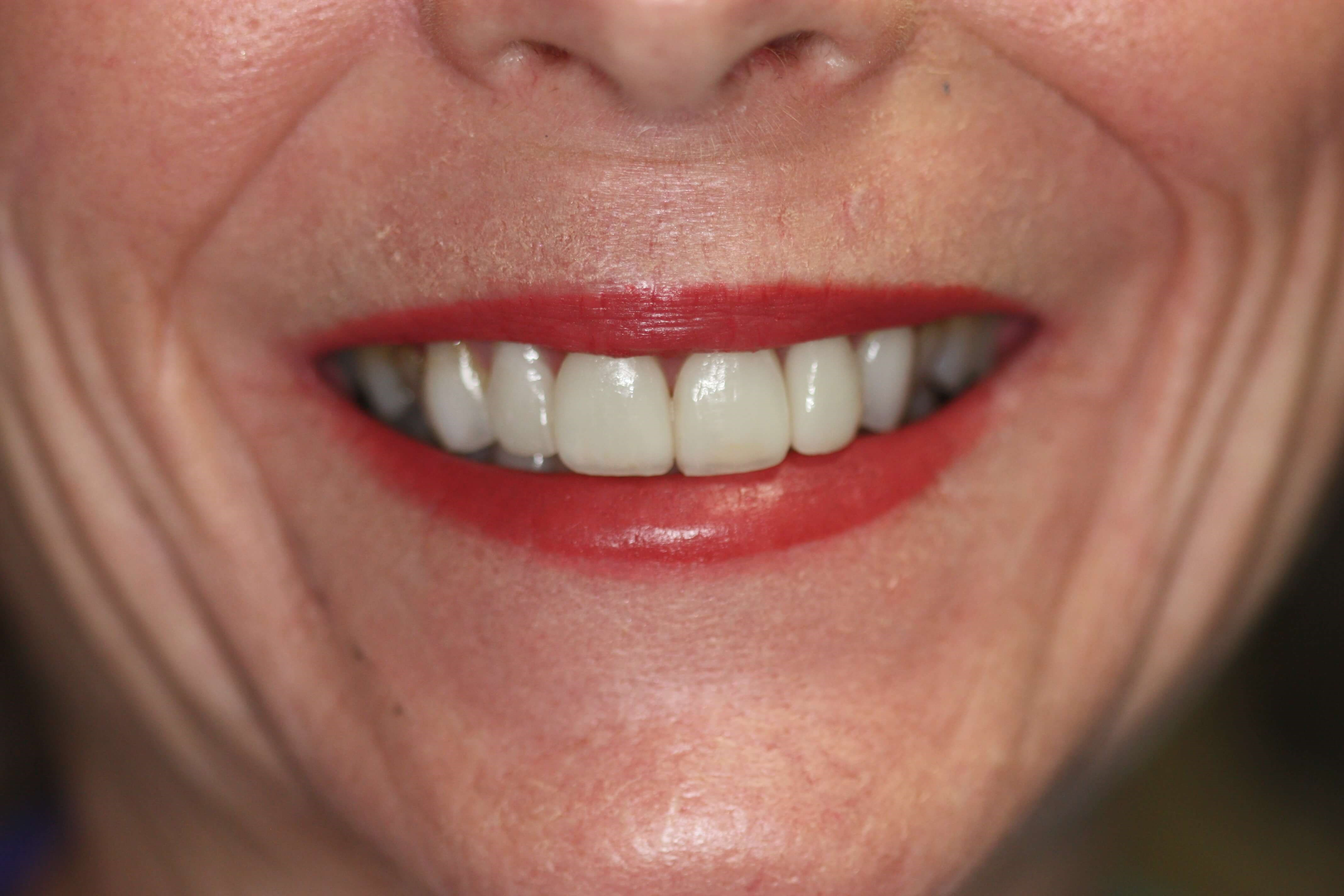 Worn dentition After